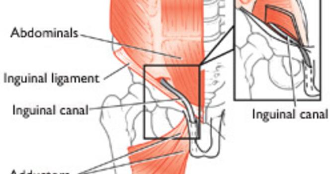 Osteoarthritis (Disc Disease)